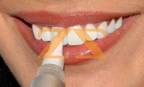 قلم تبيض الاسنان